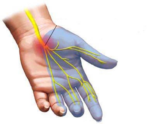 Chữa trị tê bì mặt, tê bì tay chân bằng phương pháp Đông y 1