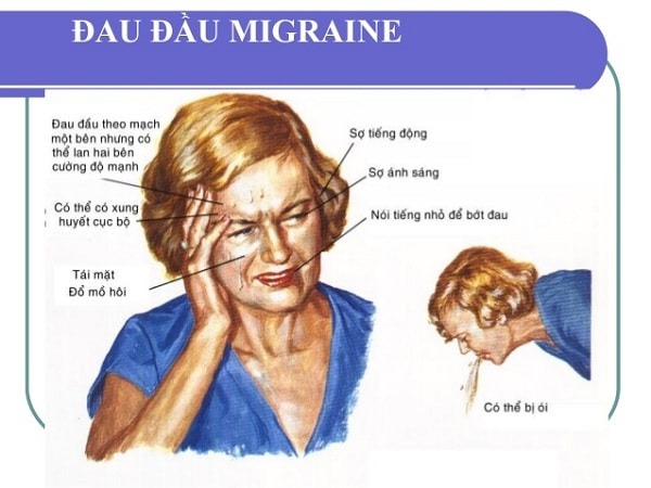 Triệu chứng của bênh đau nửa đầu Migraine