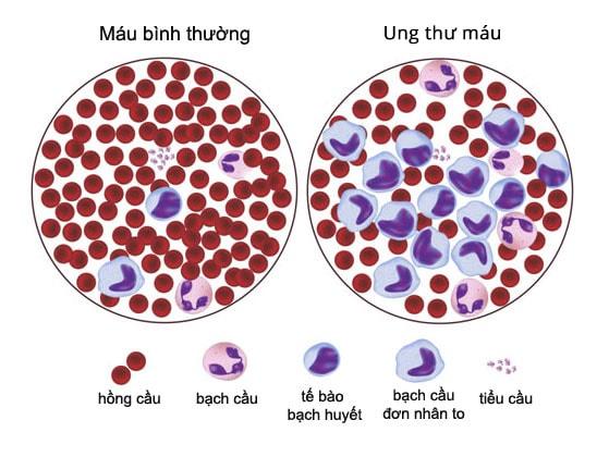 Tăng cao lượng bạch cầu trong máu có phải bị ung thư hay không? 2