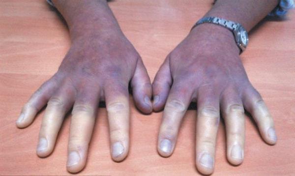 Hồng cầu trong máu tăng cao - Nguyên nhân và cách khắc phục 2