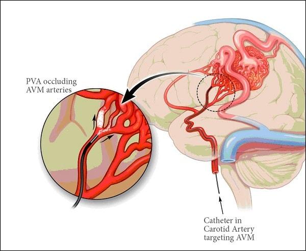 Hồng cầu trong máu tăng cao - Nguyên nhân và cách khắc phục 3