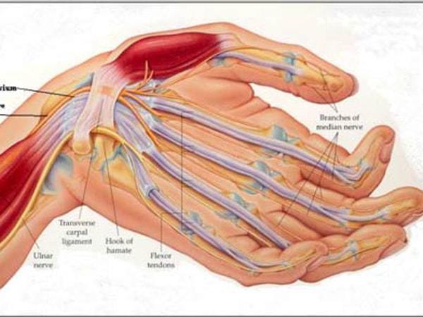 biến chứng thần kinh ngoại biên 2