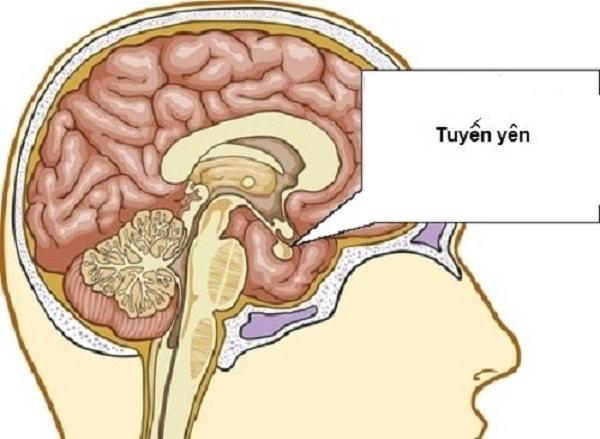 nguyên nhân gây hội chứng Cushing 2